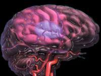 Риск инсульта и мутация гена