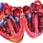 Лечение сердечников